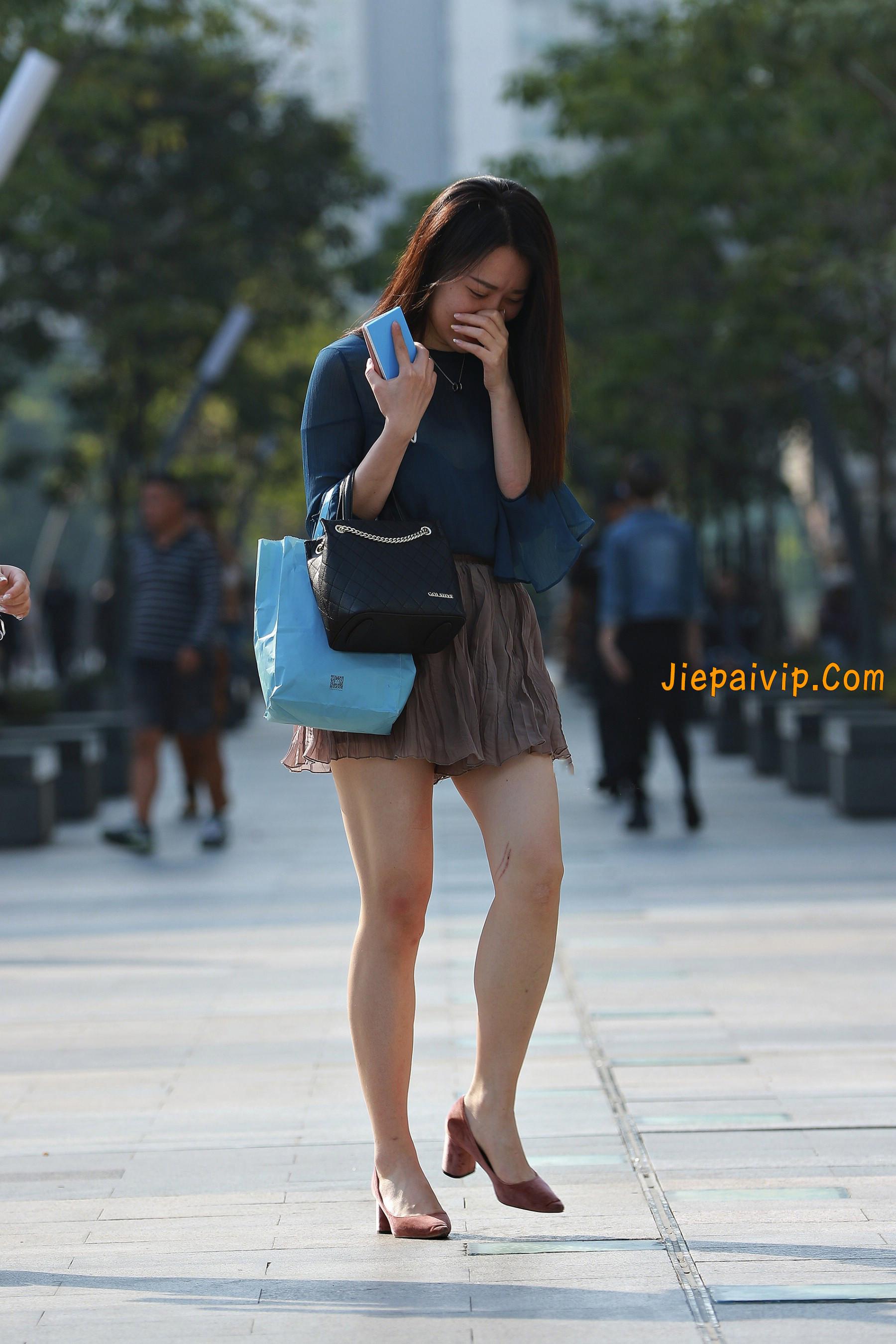 害羞 性感 白嫩美腿 淑女,膝盖怎么回事呢?1